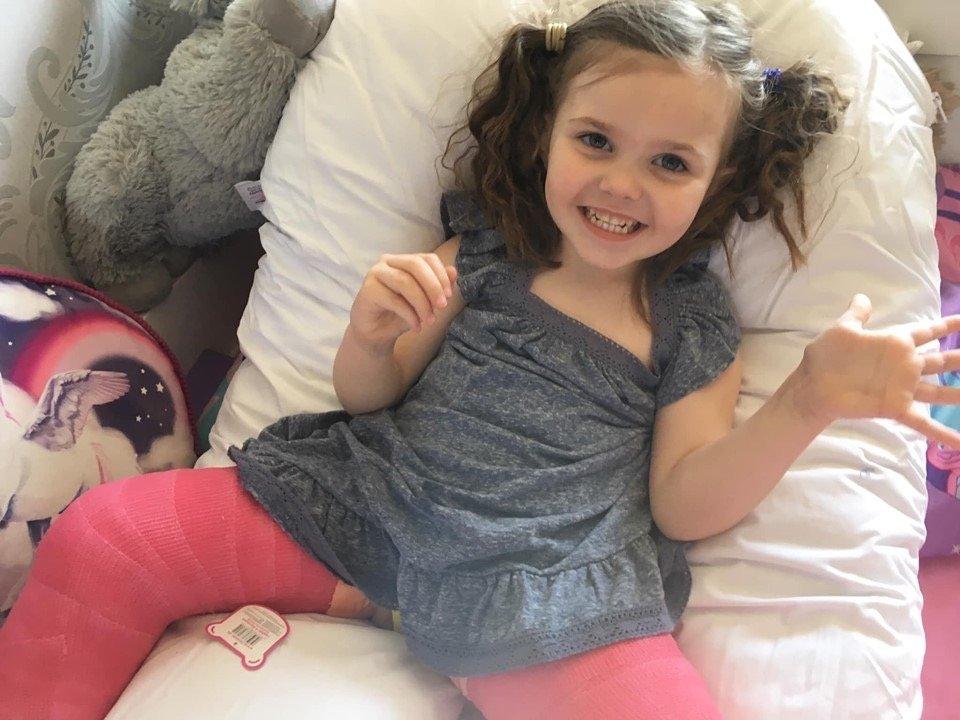 'Floating leg' on toddler inspires fundraising for hospital