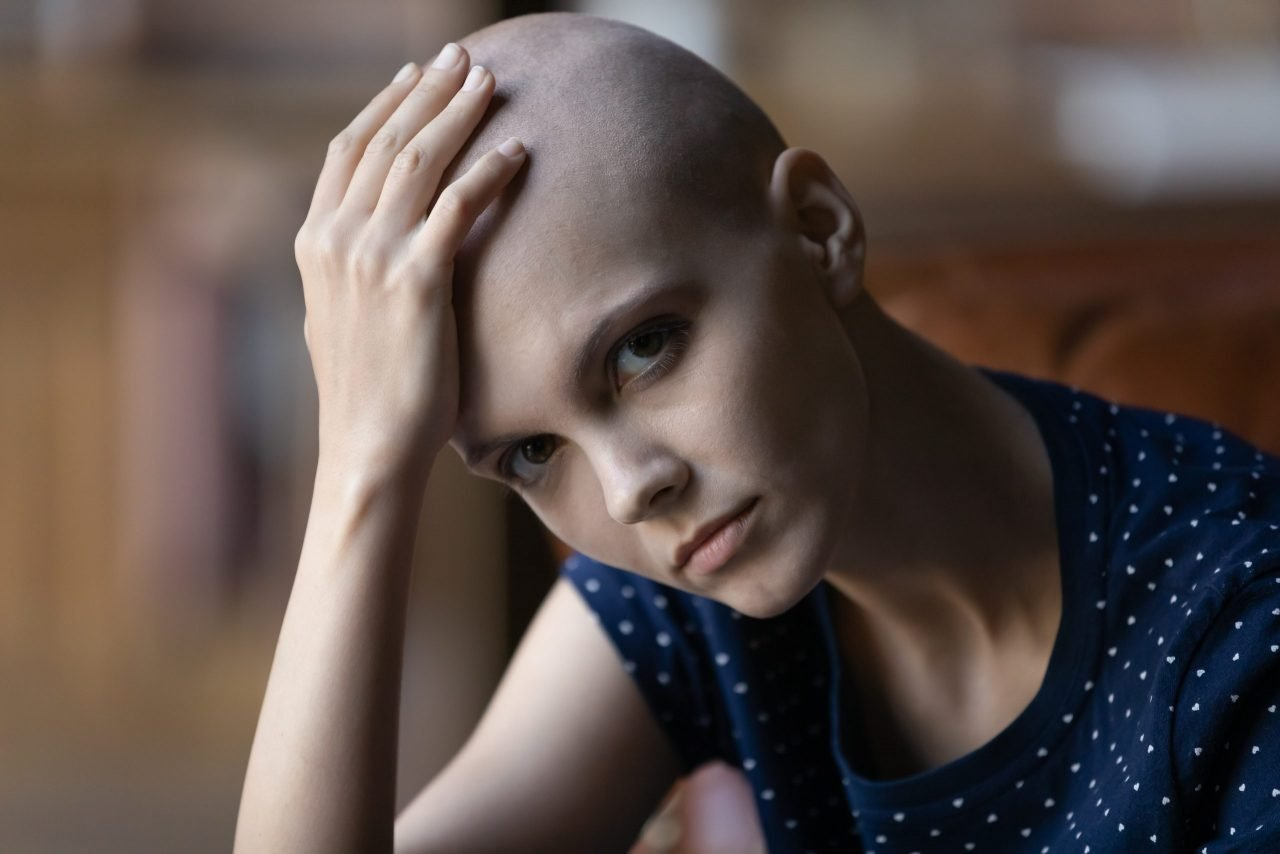 Inadequate mental health support risks derailing young cancer patients' lives